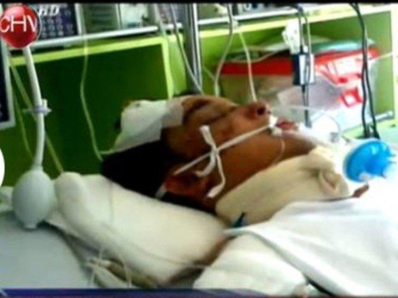 Zamudio, de 24 anos, está internado desde sábado em uma UIT (Unidade de Terapia Intensiva) em hospital de Santiago
